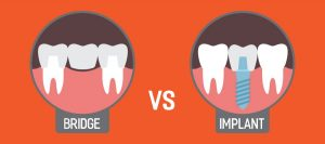 bridge-vs-implant