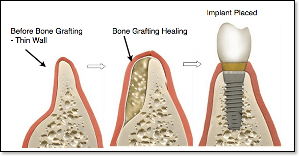 bone-grafting