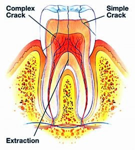 cracked-or-fractured-tooth